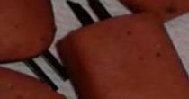 Angri: pezzi di lame all'interno di wurstel